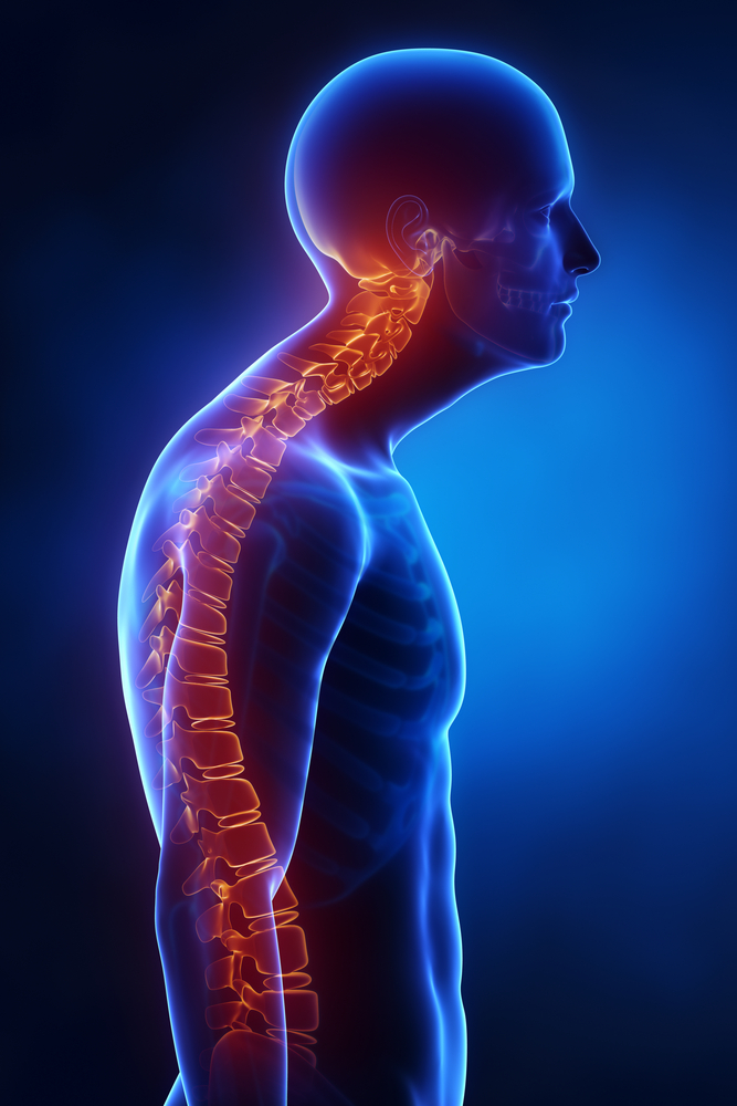 Kyphosis What Is It and How Is It Treated