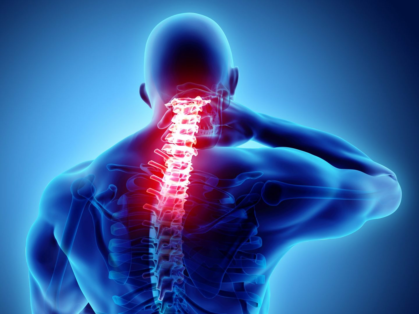 Cervical Radiculopathy A Real Pain in the Neck